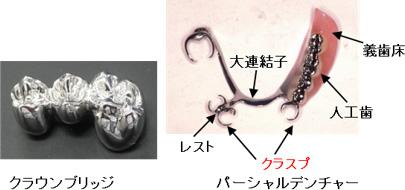 人工歯(補綴修復物)の説明図